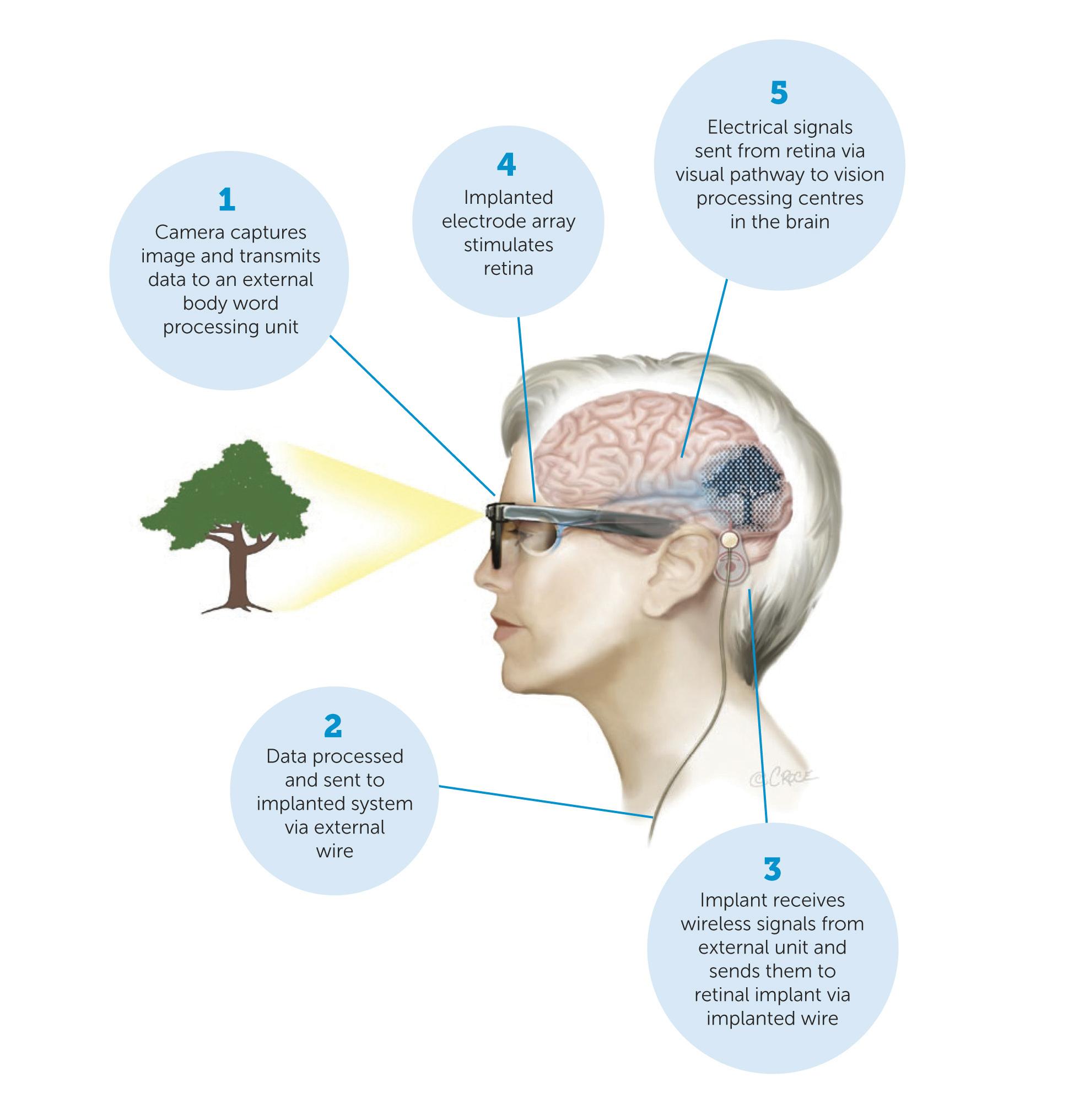 Developing a bionic eye scientist live retinal implant innovator bionic vision technologies bvt has had raised us 18 million au235 million from hong kong based china huarong international ccuart Choice Image